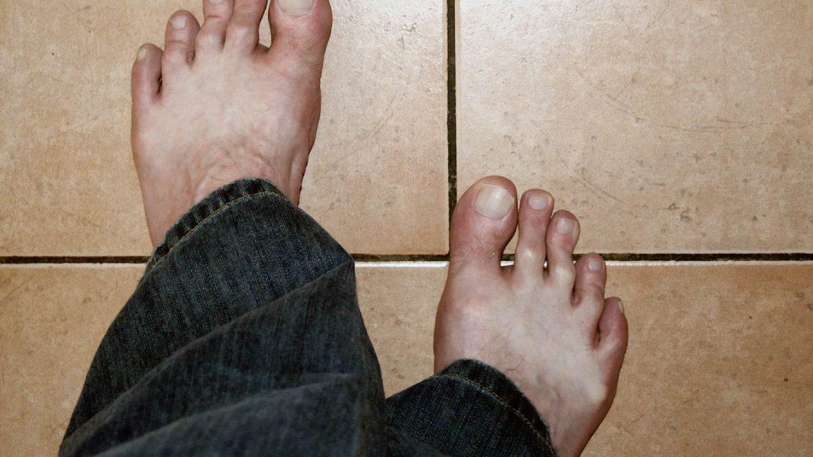 Ryzyko bandażowania stóp